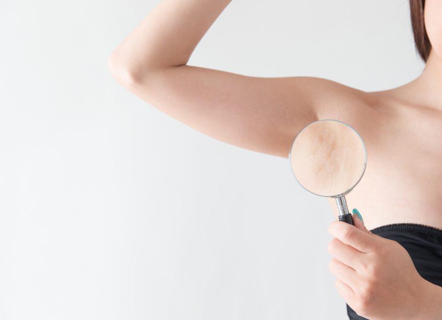 脇の黒ずみを何とかしたい!予防法と対策法を知り美肌を手に入れよう