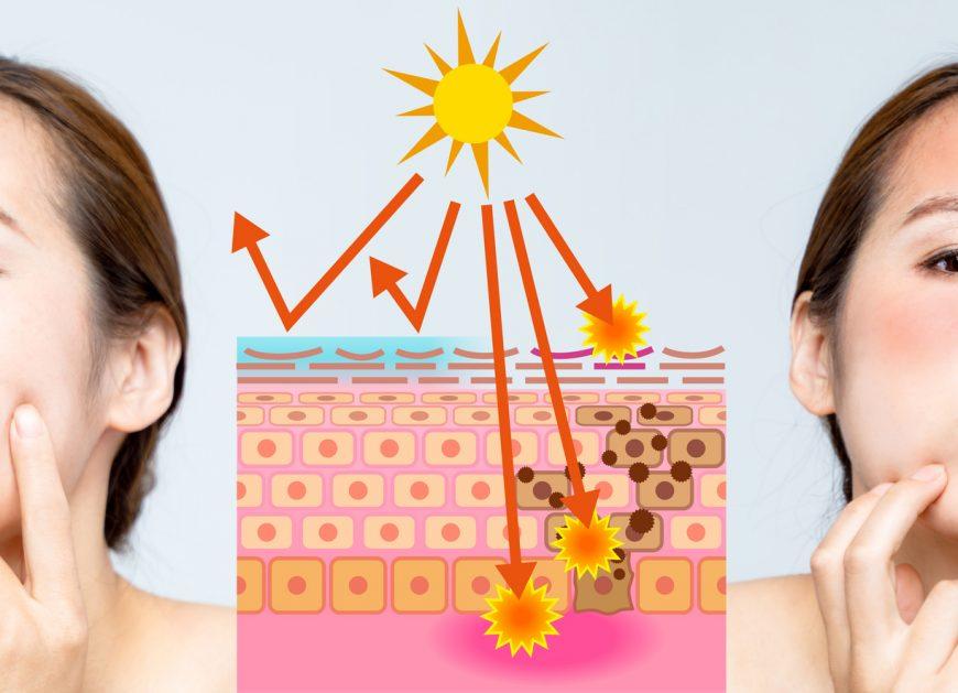 日焼けはシミにつながるの?シミを防ぐポイントとは