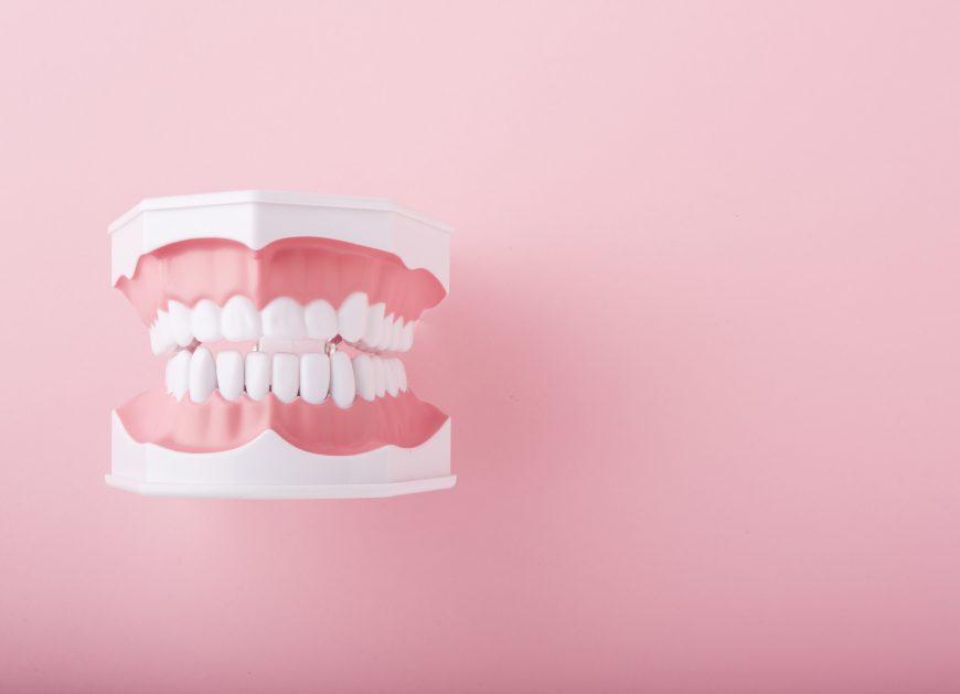 歯の黄ばみ・ホワイトニング